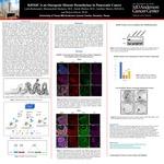 KDM4C is an Oncogenic Histone Demethylase in Pancreatic Cancer